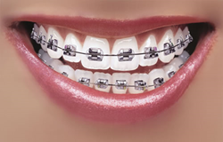 Columbia Orthodontics, your choice for a dentist in Vancouver WA wants to help you make those tough decisions on when and if your child needs braces. We can help.