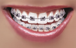 An Orthodontist in Vancouver, WA, Releases Two Blog Posts about How Children Are Getting Braces Earlier Than Ever and Advice for Talking to Children about Braces