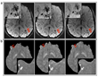 RSNA: MRI Improves Diagnosis of Microbleeding after Brain Injury in Military Personnel
