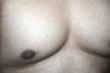 ASDS Study: Fat-Freezing Reduces Enlarged Male Breasts