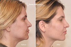 Before and after photo showing the much younger looking profile of a patient treated with VENLAY® Restorations and the Face Lift Dentistry® method.