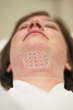Patient marked for Kybella injection