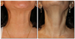 Ethos Spa, Skin and Laser Center Begins Offering New Nonsurgical Nefertiti Neck Lifts