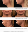 Ethos Spa, Skin and Laser Center To Offer Coolsculpting For Double Chin Treatment