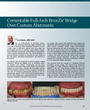 Cementable Full-Arch BruxZir® Bridge Over Custom Abutments