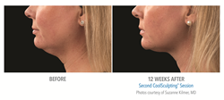 coolsculpting, double chin, cool, mini, before, after, stamford, ct