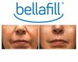 Ethos Spa, Skin and Laser Center Announces Availability of Bellafill Dermal Filler