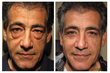 Dr. Soroudi Performs 1,500th Blepharoplasty in West L.A.