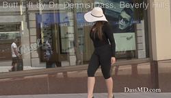 Dr. Dennis Dass' Brazilian Butt Lift patient walks along Rodeo Drive in Beverly Hills