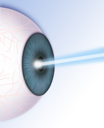 An illustration of a laser pointed at an eye