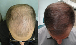 Dr J Rapaport PRP for Hair Loss