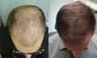 """Expert Reveals Best-Kept Secret in the Fight Against Hair Loss on """"Good Morning America"""""""