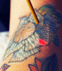 San Antonio Laser Tattoo Removal