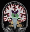 Emerson Hospital Selects NeuroQuant for Quantifying Brain Volume Loss in TBI patients at the Dr. Robert C. Cantu Concussion Center
