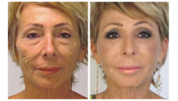 fat transfer to face, anti aging, myshape lipo, trevor schmidt pa-c, liposuction, facial rejuvenation