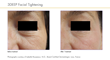Before and After iFine treatments, courtesy of Dr. Isabelle Rousseaux