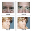 Article on National Plastic Surgery Desires Highlights the Smaller Than Expected Gap Between Male and Female Surgery Preferences, Notes Beverly Hills Physicians