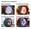 New Man Clinic - case study - Alopecia areata treatment using Kapyderm natural products