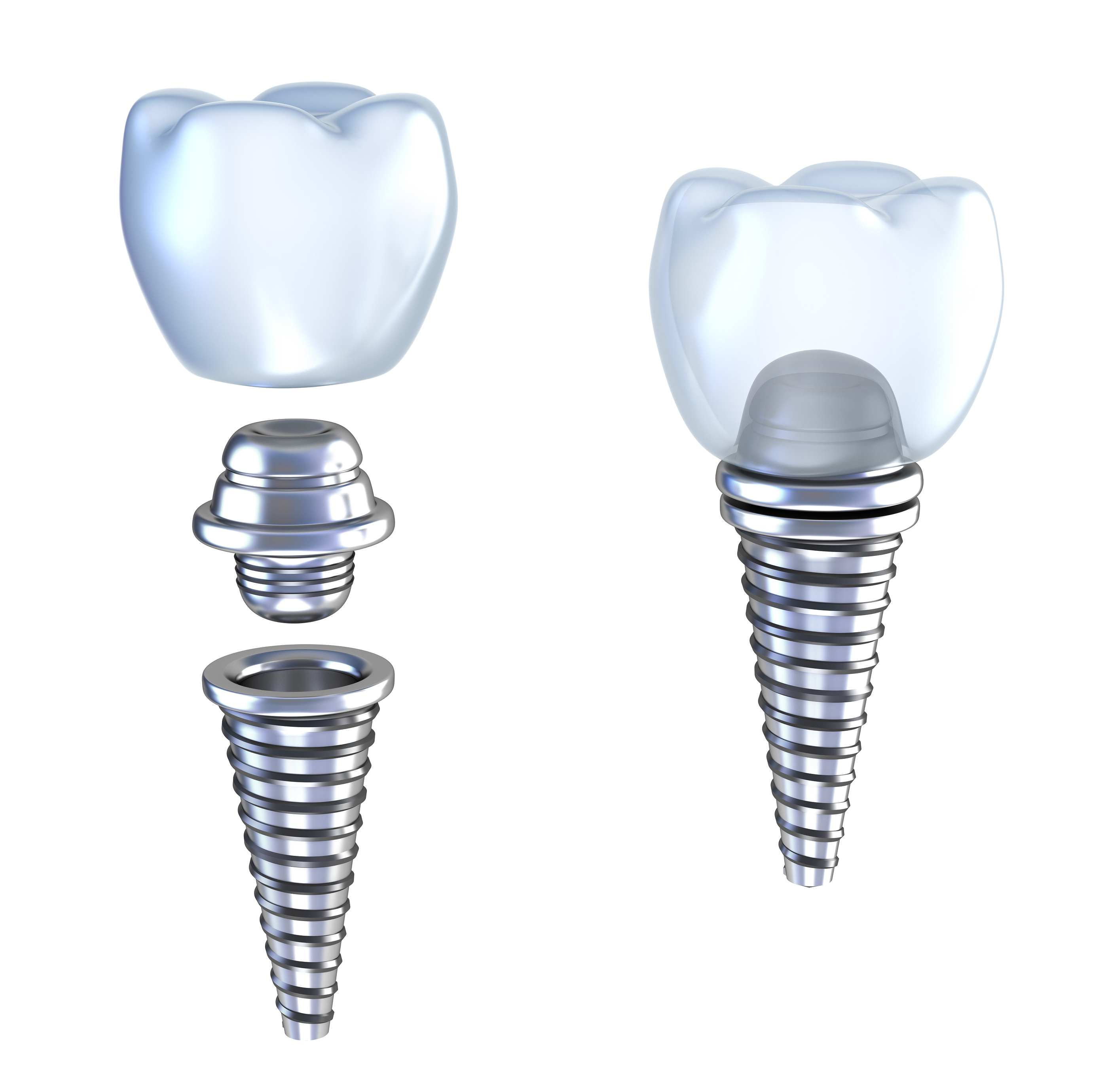 implant dentistry Dental implants can be life-changing implants provide a foundation for  replacement teeth these look, feel, and function like natural teeth this gives a  patient.