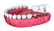 An implant bridge can replace multiple missing teeth in a section of your mouth