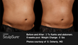 SculpSure: Before & After