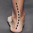 Before HyProCure Heel Bisection
