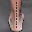 After HyProCure Heel Bisection