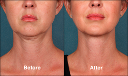 Before and After - Kybella