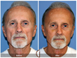 Before and after photo of facial fat grafting with PRP.  Treatment was used to restore lost facial volume due to aging in this male's face.  Newport Beach Orange County Facial Plastic Surgery