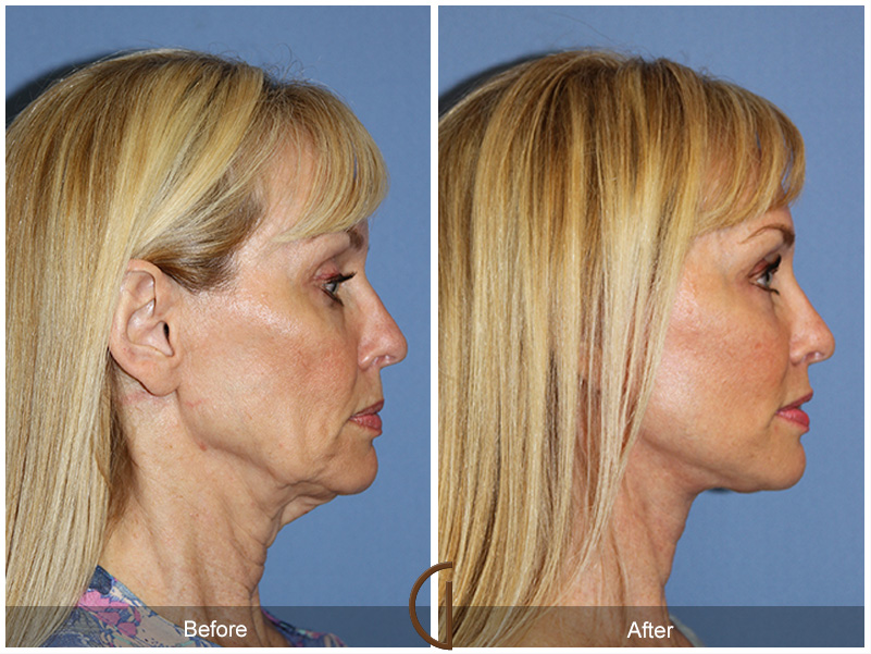 Cosmetic facial florida surgery