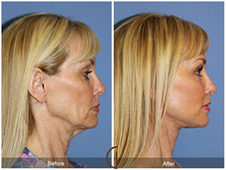Natural-looking lower facelift and neck lift by Dr. Kevin Sadati. No General Anesthesia! Newport Beach Orange County Long Beach Huntington Beach
