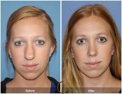 Rhinoplasty Septoplasty Deviated Nasal Septum Broken Nose Newport Beach Orange County Costa Mesa Huntington Beach