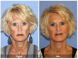 Fat Grafting with PRP paired with a lower facelift and neck lift procedure.  Newport Beach Orange County OC Cosmetic Surgery