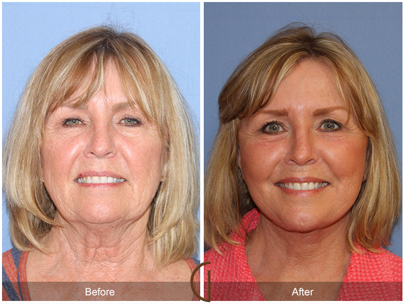Top Facial Plastic Surgeon From The Gallery Of Cosmetic