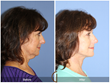 Neck lift Cosmetic Surgery Plastic Surgery Facelift Neck Liposuction Facial Plastic Surgeon Newport Beach Orange County Huntington Beach Costa Mesa Corona del Mar