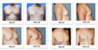 Article on Male Breast Reduction Highlights the Important Difference between Gynecomastia and Pseudo-Gynecomastia, Says Beverly Hills Physicians
