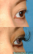 Eyelash Transplant before-and-after