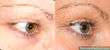 Eyelash scar repair