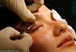 Eyelash Transplant Patient
