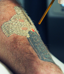 Best Laser Tattoo Removal in Tampa