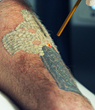 Adding the Astanza Eternity, Erasable Inc. of Tampa Expands Their Services with a Third Wavelength for Tattoo Removal