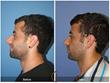 Rhinoplasty Septoplasty Deviated Nasal Septum Broken Nose Newport Beach Orange County Costa Mesa Huntington Beach