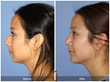 Teenage Rhinoplasty Chin Implant Chin Augmentation