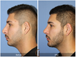 Rhinoplasty Chin Implant Facial Plastic Surgery Male revision rhinoplasty and chin implant done by Newport Beach top facial plastic surgeon, Dr. Kevin Sadati.