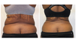 trevor schmidt pa-c, liposuction, smart lipo, laser skin tightening, tummy tuck