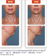 Ethos Spa, Skin and Laser Center Announces Availability of Kybella, the Only FDA Approved Treatment For The Double Chin