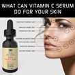 Vitamin C Serum can help get rid of wrinkles, fine lines, dark spots, acne scars and more