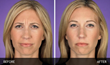 Before and After Botox