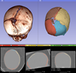 Kitware Announces the Release of 3D Slicer 4.5 for Medical Image Analysis