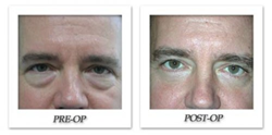 Article on Male Plastic Surgery Procedures Highlights the Most Popular...